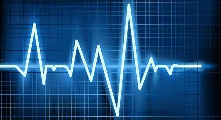 علت 30 درصد سکته های مغزی ناشی از نامنظمی های ضربان قلب است